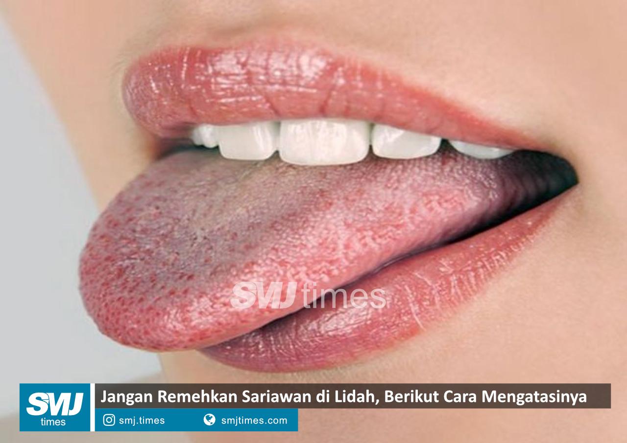 sariawan lidah