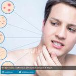 hindari kebiasaan berikut 5 penyebab jerawat di wajah