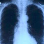 penyebab kanker paru paru selain rokok